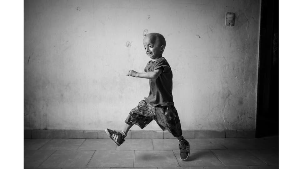 Franco Villavicencio nació con progeria (vejez prematura),Los chicos que sufren esta enfermedad lucen saludables al nacer, pero empiezan a mostrar características de la patología durante el primer año de vida, Franco sufrió un ACV y murió el 26 de febrero de 2016, luego de tres días de internación e. Foto: Zabala Martín