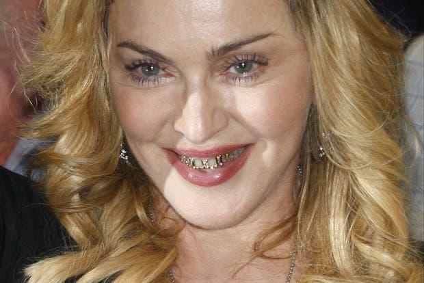 Madonna, con joyas en los dientes