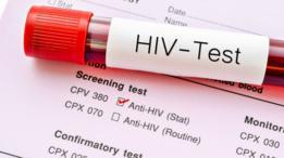 En los países con mayores restricciones, una prueba positiva de VIH supone la denegación del permiso de residencia o trabajo y, en muchos casos, la deportación.