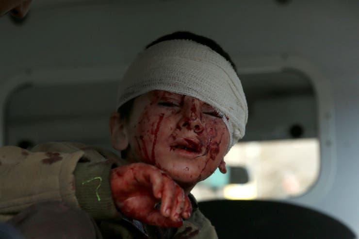Un chico lastimado se sienta en una ambulancia luego del ataque