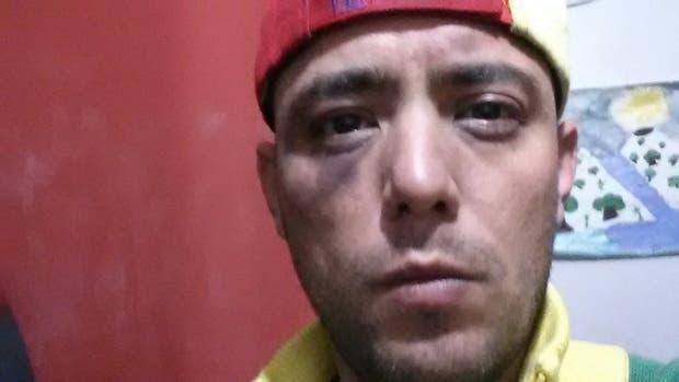 """Venezuela: un periodista opositor a Maduro desaparecido por 3 días fue encontrado """"semidesnudo y golpeado"""""""