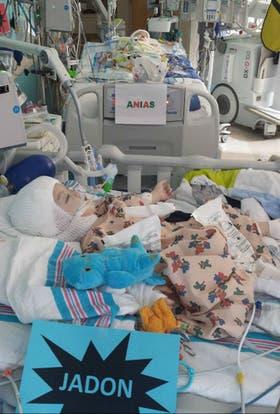 Los hermanos siameses McDonald recién salidos de la operación que los separó