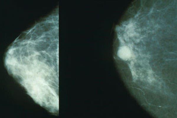 Diseminación del cáncer dentro de la mama (izq), luego de su detección (der)