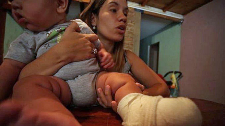 El bebe se quemó el pie por la explosión de un celular Facebook