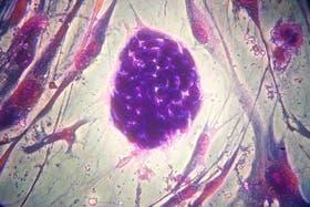 Colonias de células madre