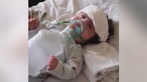 Así se encuentra Noah en la Unidad de Cuidados Intermedios del Hospital de Niños de la ciudad de Córdoba
