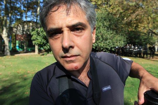 El fotógrafos José Mateos de diario Clarín recibió un balazo de goma en su cara. Foto: LA NACION / Ricardo Pristupluk