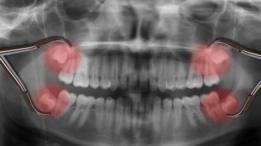 Las muelas del juicio están bien atrás en nuestra boca y cuando salen empujan al resto de los dientes por falta de espacio.