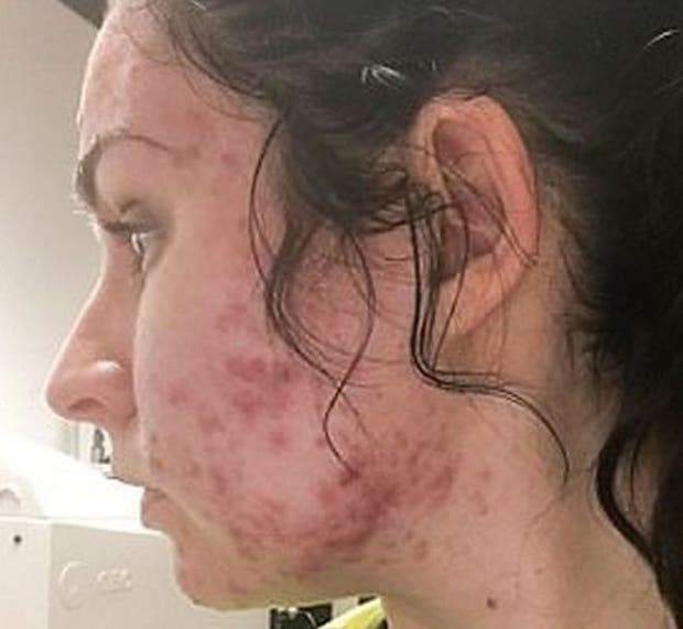Judith dice que el acné severo le salió a los 23 años, después de haber pasado por la adolescencia sin apenas tener problemas de granos.
