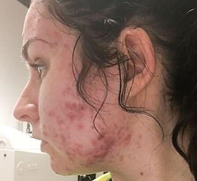 Judith publicó fotos en Instagram mostrando su acné un mes después de haber empezado un tratamiento con Roacután.