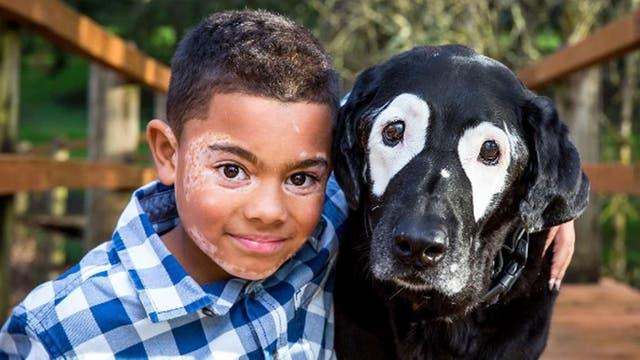 Día Mundial del Vitiligo