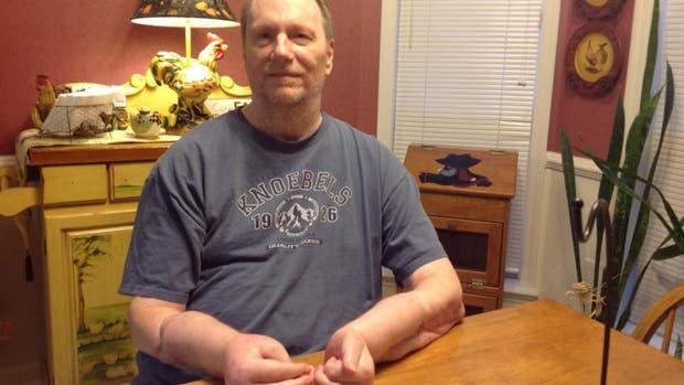 El primer hombre norteamericano en recibir un doble transplante de manos quiere que se las quiten