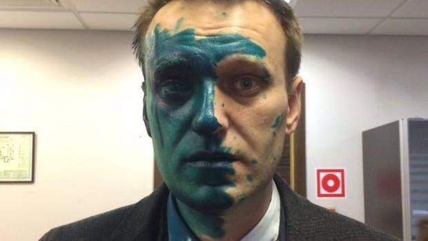 A Navalny lo han rociado con el antiséptico verde en dos oportunidades