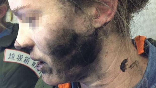 A esta mujer le explotaron los audífonos en pleno vuelo