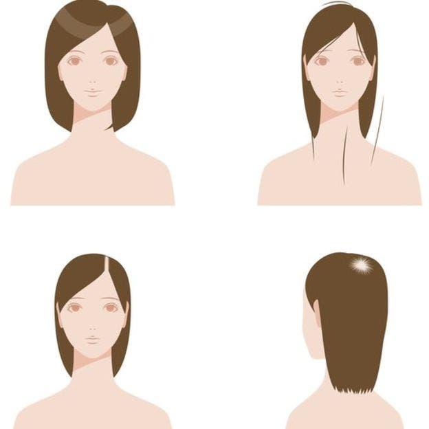 Por qu se nos cae el pelo y cu ndo puede ser signo de una enfermedad la nacion - En que meses se cae mas el pelo ...