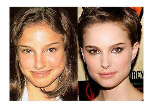 Natalie Portman se afinó la nariz pero sigue manteniendo una belleza clásica. Foto: /www.dailycognition.com