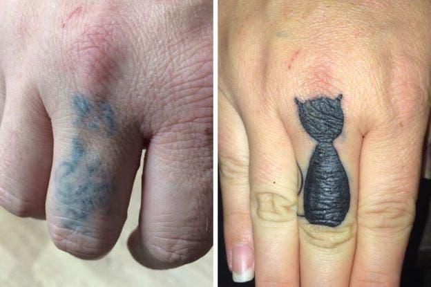 Angela está intentando borrarse sus tatuajes racistas con láser y cubrirlos con otras imágenes pacíficas