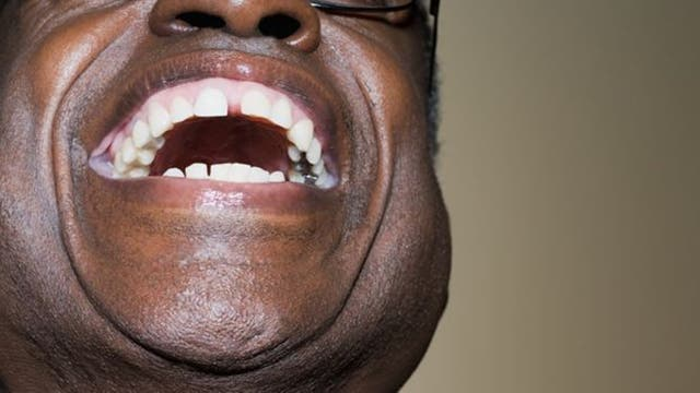 Si lo pensamos, reírse no suena normal. Pero todos lo hacemos