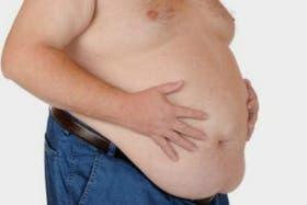 La obesidad mórbida comienza con el sobrepeso y hoy es una epidemia en todo el mundo