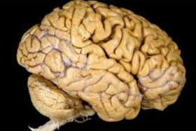 Poder ver dentro del cerebro, permitirá nuevas técnicas de operaciones y estudios complejos