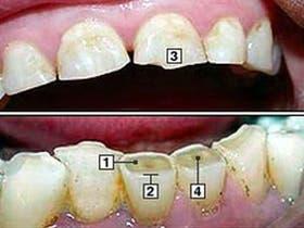 Daños dentales por bruxismo: 1. Enamel erosionado. 2. Incisivos planos. 3. Cantos angulosos 4. Cámara del nervio visible en el centro del diente.