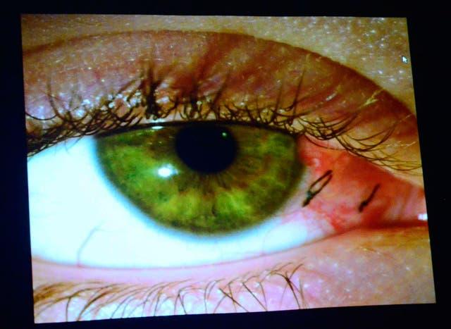 El glaucoma es la segunda causa de ceguera