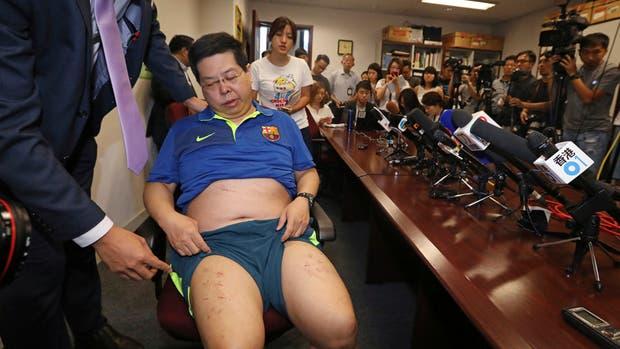 Howard Lam muestra sus heridas en una conferencia de prensa