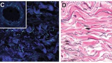 Las partes en azul oscuro son haces de colágeno fibrilar. En la imagen de la derecha se ven las fibras de elastina en negro y las estructuras de colágeno en rosa.