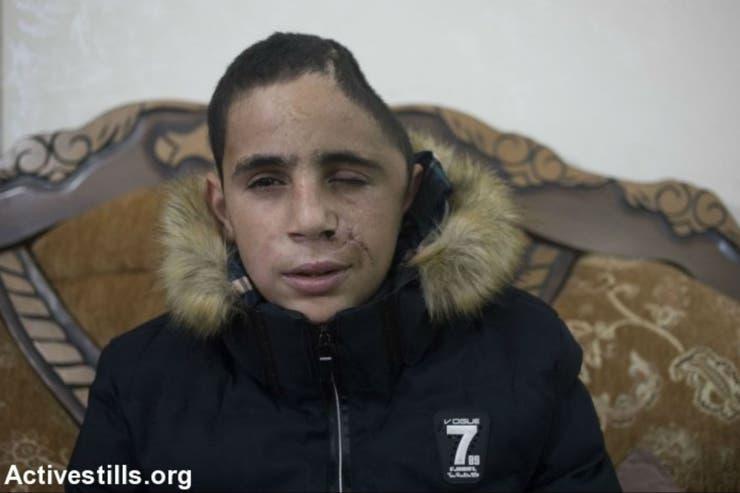 El primo de Ahed, herido por las fuerzas israelíes