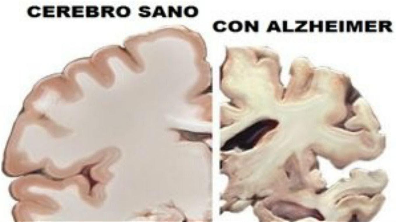 Cómo Prevenir La Aparición Del Alzheimer La Nacion