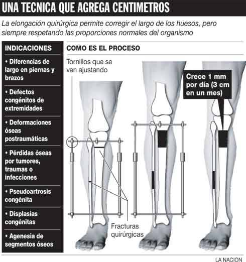 Hueso largo de la pierna el brazo