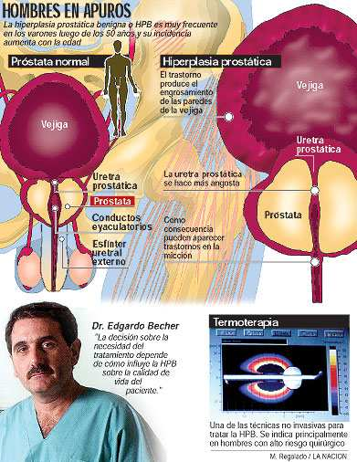 miel uretritis terapia lunardi