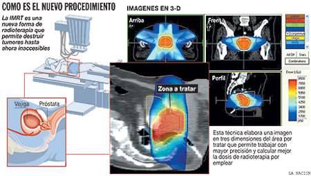 qué radioterapia se usa para el cáncer de próstata