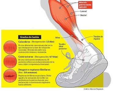De piernas apretados tendones la las posterior en parte