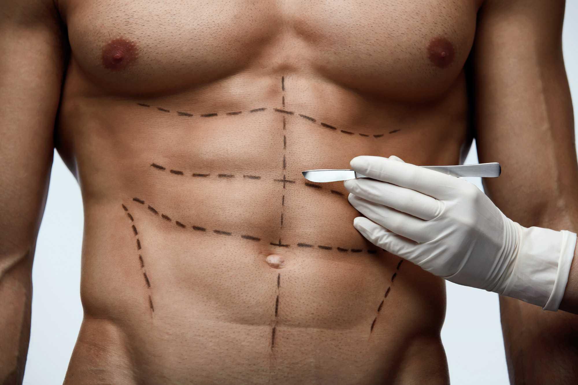 cirugía para bajar panza