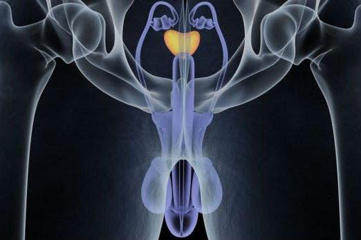 método de antígeno prostático específico niveles clia