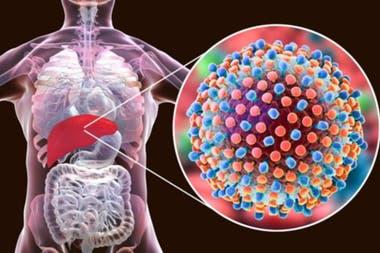 La hepatitis C es considerada la más peligrosa porque es una enfermedad silenciosa que puede causar mucho daño sin que uno lo sepa