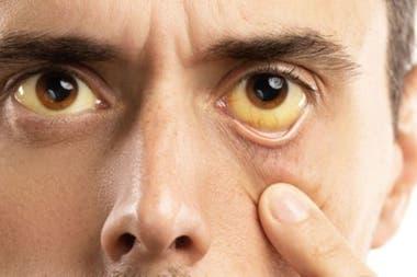 La hepatitis puede causar ictericia, la coloración amarillenta de la piel y los ojos