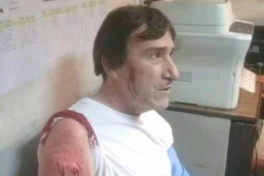 Un conductor de la línea 501 fue atacado el martes por la noche