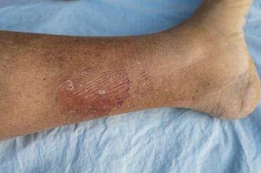 Quienes sobreviven a una septicemia pueden quedar con daños a largo plazo y discapacidad pues provoca fallas en los órganos