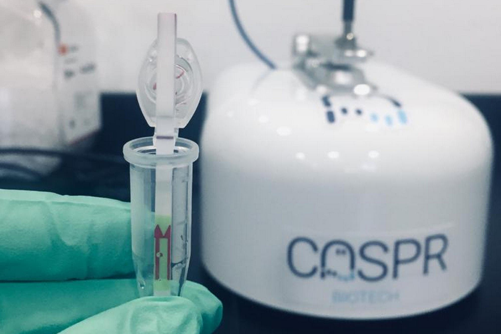 Cómo es la tecnología del kit para detección rápida del coronavirus creado en la Argentina