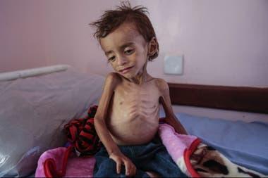 Otra víctima de la desnutrición en un centro de salud en la ciudad de Hajjah en Yemen refleja el horror que se vive en el país producto de la guerra