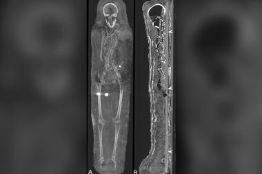 Las radiografías tomadas a las momias revelaron datos ocultos