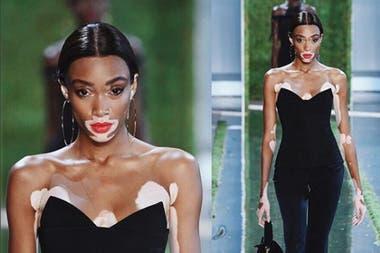 Victorias Secret Contrató A Una Modelo Con Vitiligo Para Su Desfile
