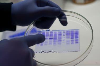 La enzima que va a ser utilizada en el test rápido de Covid-19 será de la firma santafesina