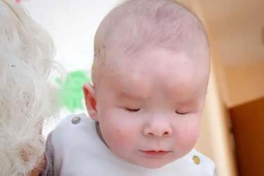 Sasha nació sin globos oculares y su madre lo abandonó cuando se enteró de su enfermedad