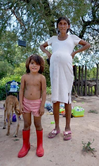 Isabel Cabana junto a su hija Bianca; ella está desnutrida y embarazada de ocho meses