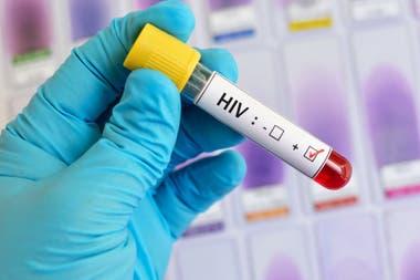Si el ensayo resulta exitoso, promete cambiar por completo el escenario de una epidemia que en el mundo afecta a 37 millones de personas y todos los años suma dos millones