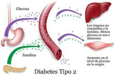 bajos niveles de azúcar en la sangre en la diabetes tipo 2