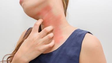 Salicilico acido alergia sintomas al